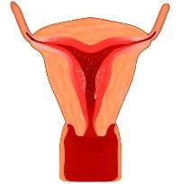 Гистология кисты яичника что thumbnail