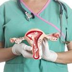 макет матки в руках гинеколога
