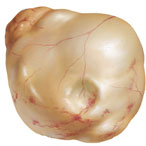 рисунок кисты яичника женщины