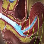 Метод УЗИ в гинекологии