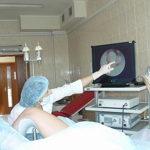 Анализы для удаления полипа матки при подготовке к операции