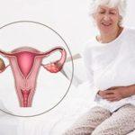 Лечение кисты яичника в период менопаузы в Москве