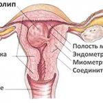 Лечение полипов эндометрия в матке и обнаружение симптомов в Москве