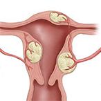 Субмукозная миома матки: лечение и операция по удалению узлов подслизистой в Москве