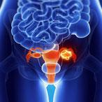 рисунок опухоли яичника женщины